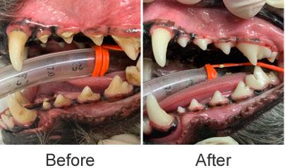 歯周病治療前、後